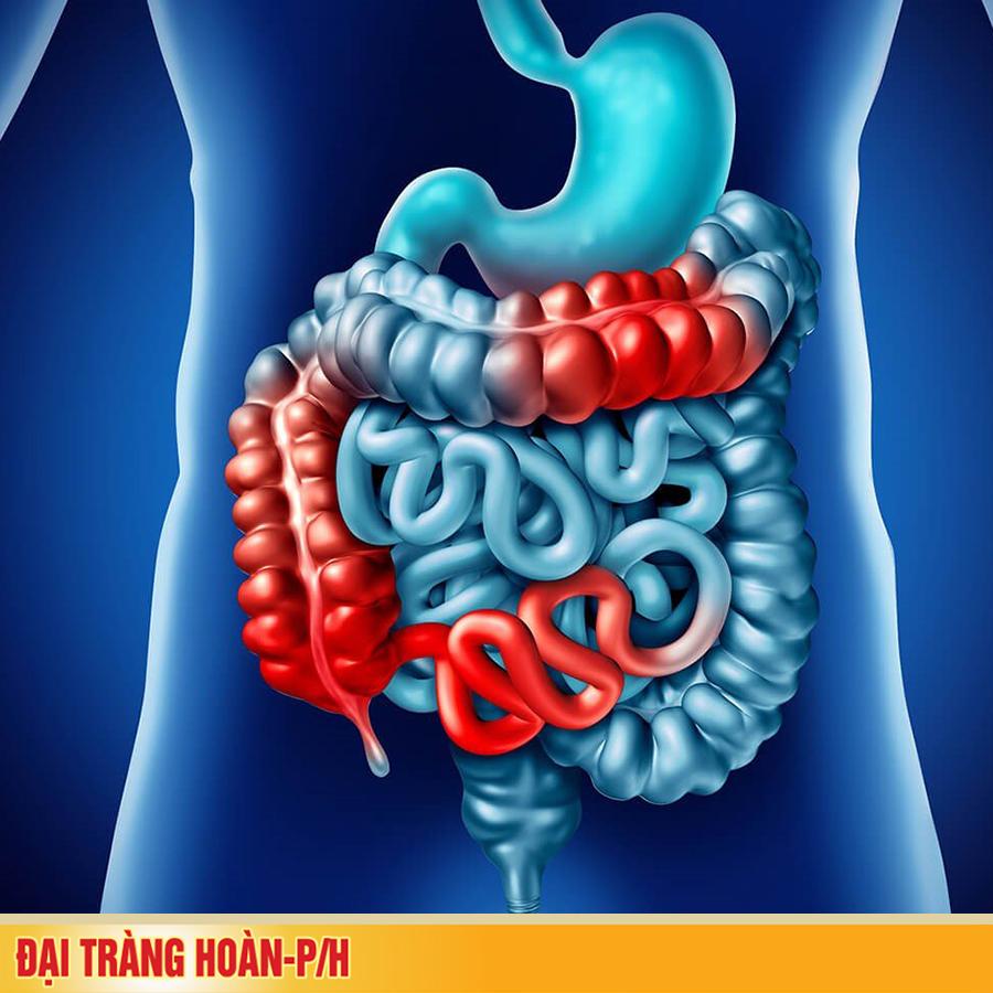 Triệu chứng bệnh viêm đại tràng mạn tính bạn cần biết
